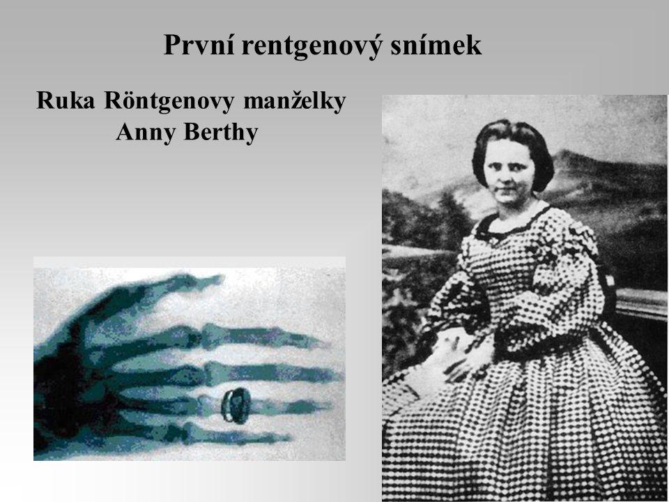 První rentgenový snímek Ruka Röntgenovy manželky Anny Berthy