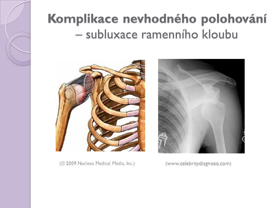 Komplikace nevhodného polohování – subluxace ramenního kloubu (© 2009 Nucleus Medical Media, Inc.) (www.celebritydiagnosis.com)