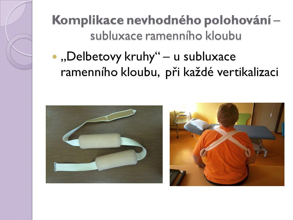 """Komplikace nevhodného polohování – subluxace ramenního kloubu """"Delbetovy kruhy"""" – u subluxace ramenního kloubu, při každé vertikalizaci"""