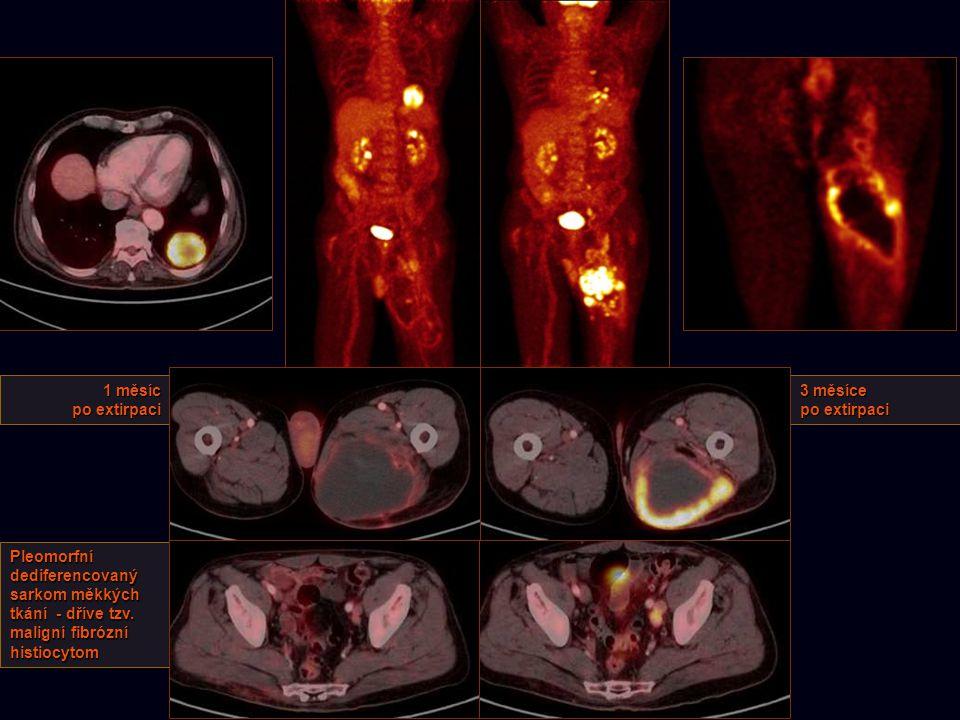 1 měsíc po extirpaci 3 měsíce po extirpaci Pleomorfní dediferencovaný sarkom měkkých tkání - dříve tzv. maligní fibrózní histiocytom