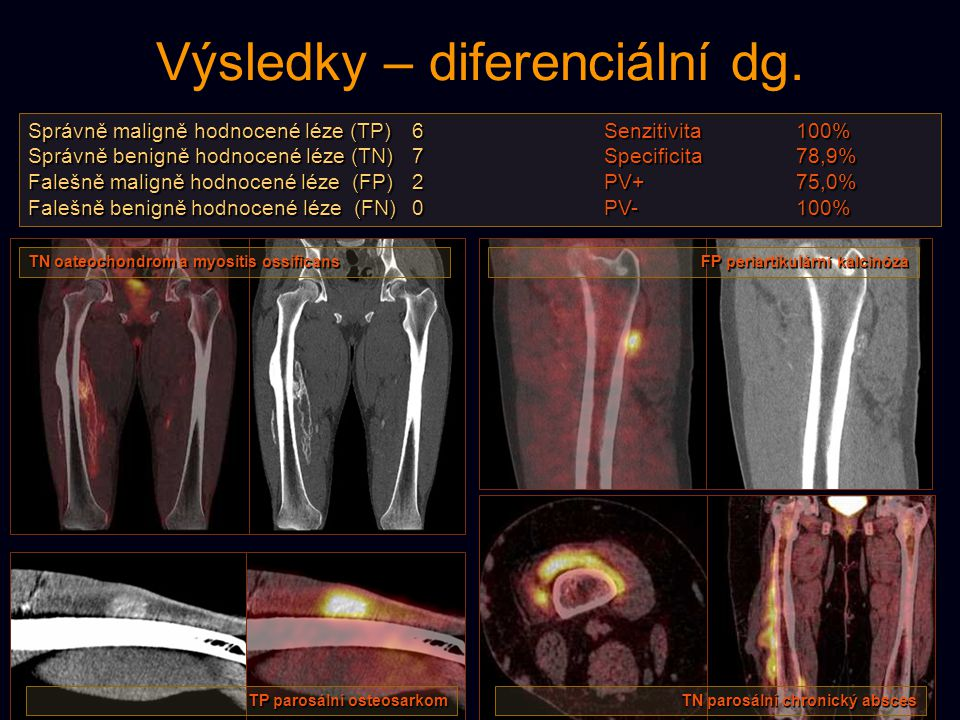 Výsledky – diferenciální dg. Správně maligně hodnocené léze (TP)6Senzitivita100% Správně benigně hodnocené léze (TN)7Specificita78,9% Falešně maligně