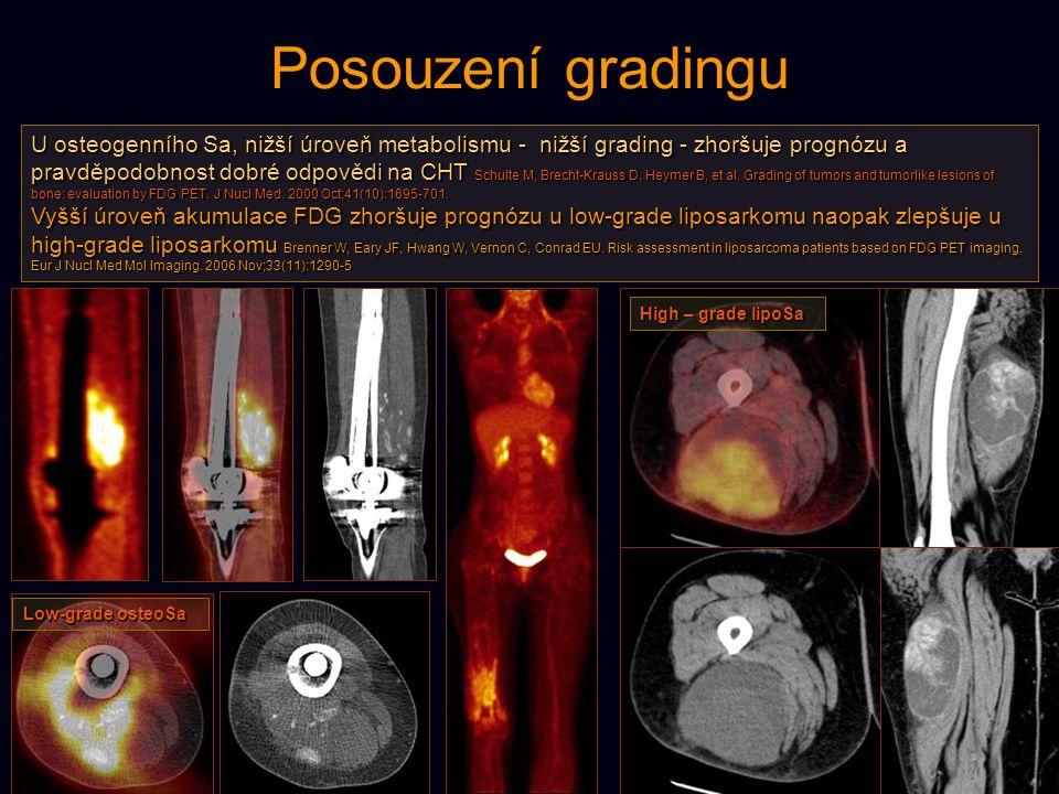 Posouzení gradingu U osteogenního Sa, nižší úroveň metabolismu - nižší grading - zhoršuje prognózu a pravděpodobnost dobré odpovědi na CHT Schulte M,