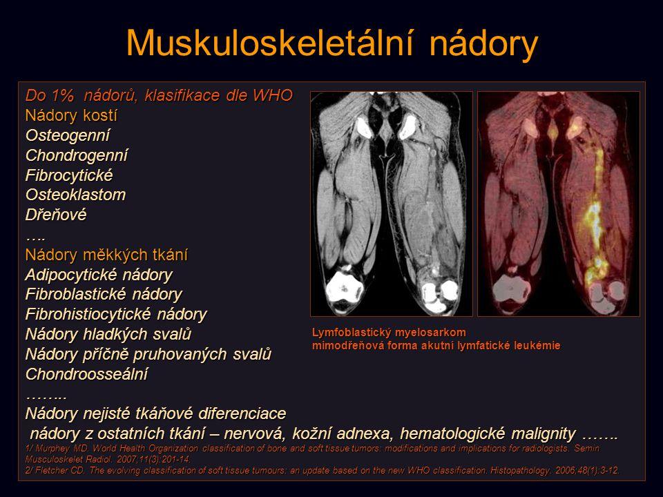 Metabolismus kostních nádorů Vysoká exktrakce FDG z krve u maligních elementů embryonálního typu (PNET) a u high-grade osteogenního sarkomu – vysoký stupeň neovaskularizace + vysoká aktivita transportérů + deficit hexokinázy.