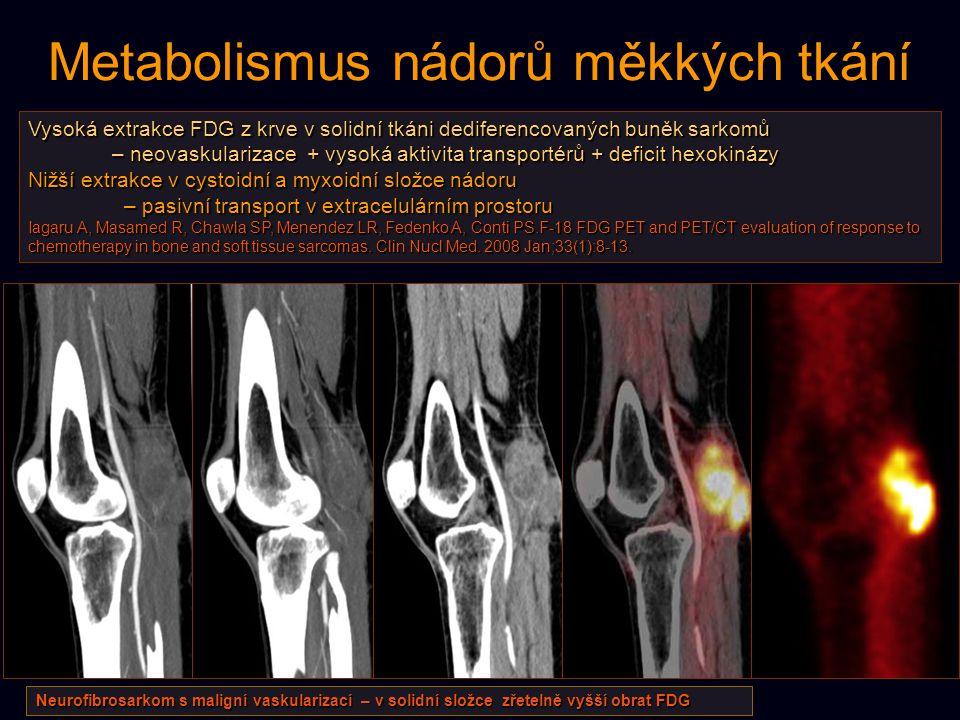 Metabolismus nádorů měkkých tkání Vysoká extrakce FDG z krve v solidní tkáni dediferencovaných buněk sarkomů – neovaskularizace + vysoká aktivita tran