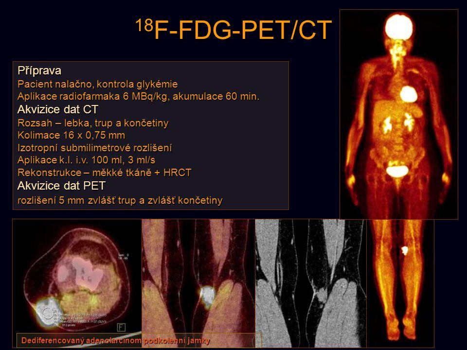 18 F-FDG-PET/CT Příprava Pacient nalačno, kontrola glykémie Aplikace radiofarmaka 6 MBq/kg, akumulace 60 min. Akvizice dat CT Rozsah – lebka, trup a k