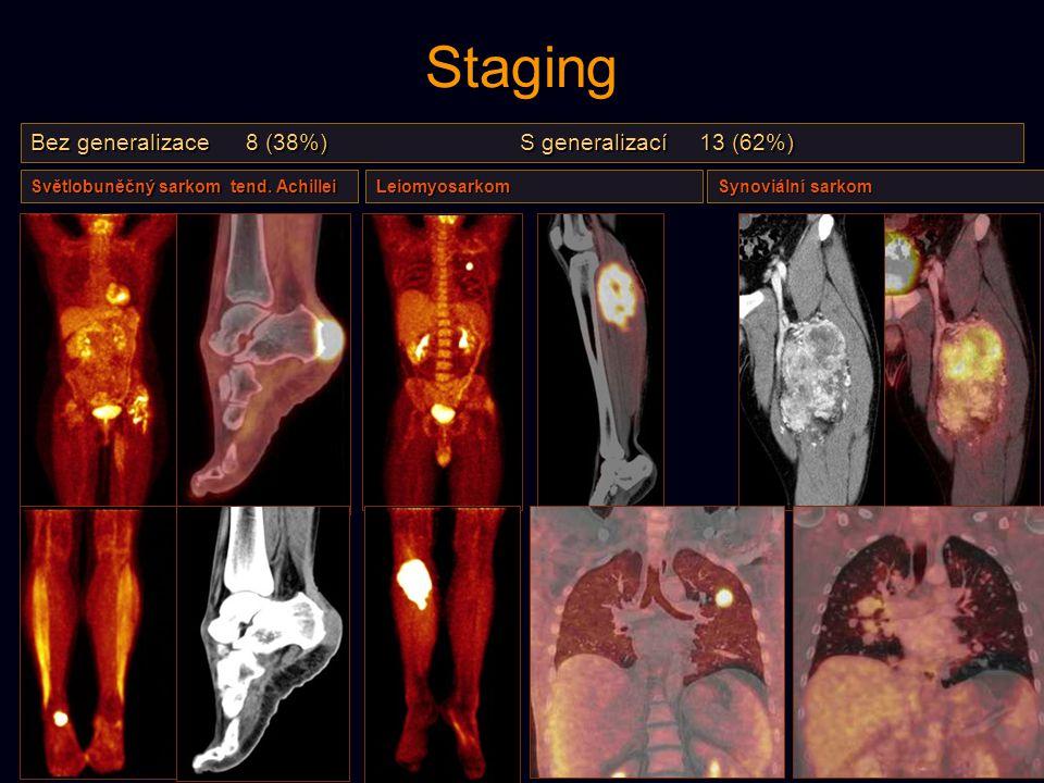 Staging Bez generalizace 8 (38%) S generalizací 13 (62%) Světlobuněčný sarkom tend. Achillei Leiomyosarkom Synoviální sarkom