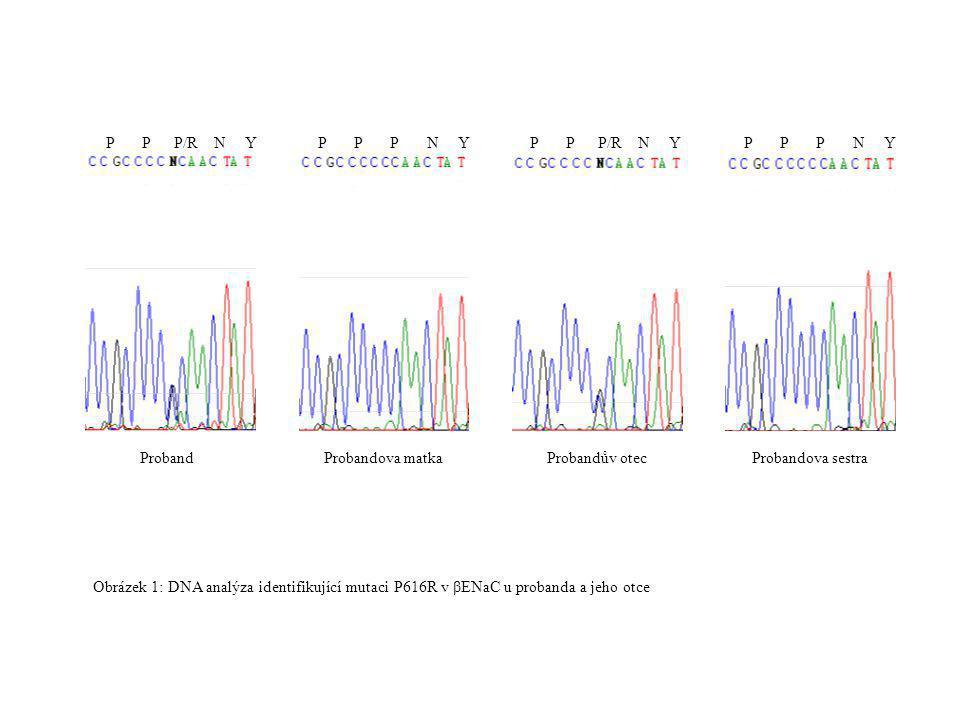 P P P/R N Y P P P N Y ProbandProbandova matkaProbandův otecProbandova sestra Obrázek 1: DNA analýza identifikující mutaci P616R v βENaC u probanda a j