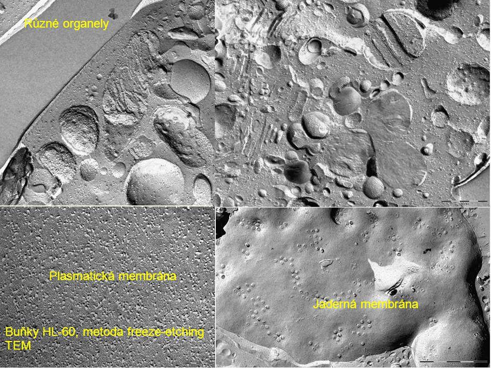 Plasmatická membrána Buňky HL-60, metoda freeze-etching TEM Jaderná membrána Různé organely