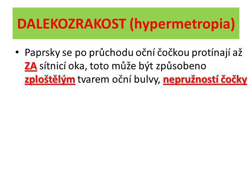 DALEKOZRAKOST (hypermetropia) ZA zploštělýmnepružností čočky Paprsky se po průchodu oční čočkou protínají až ZA sítnicí oka, toto může být způsobeno z