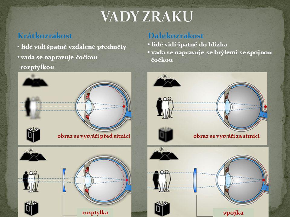 Krátkozrakost lidé vidí špatně vzdálené předměty vada se napravuje čočkou rozptylkou Dalekozrakost lidé vidí špatně do blízka vada se napravuje se brý