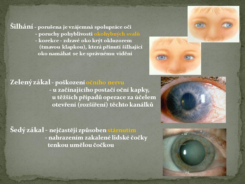 Zelený zákal - poškození očního nervu - u začínajícího postačí oční kapky, u těžších případů operace za účelem otevření (rozšíření) těchto kanálků Šed