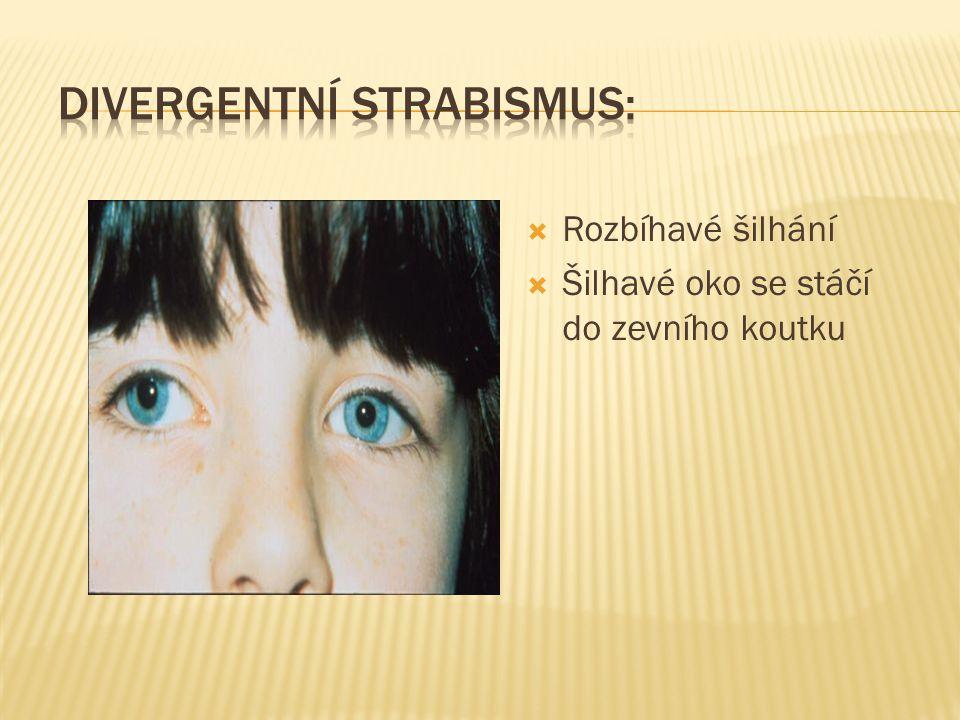  Rozbíhavé šilhání  Šilhavé oko se stáčí do zevního koutku