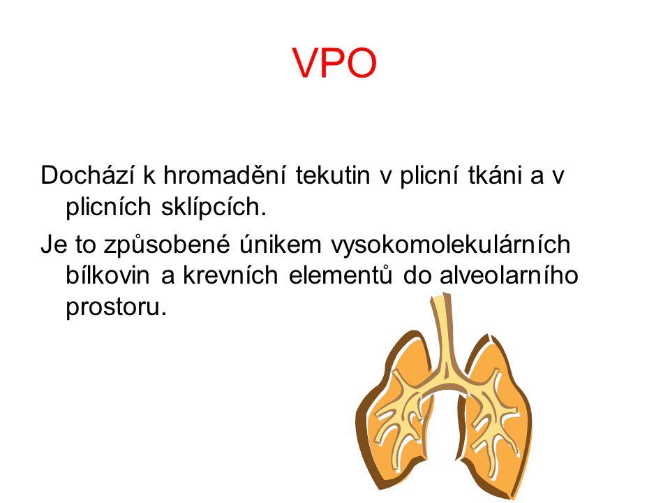 VPO Dochází k hromadění tekutin v plicní tkáni a v plicních sklípcích.