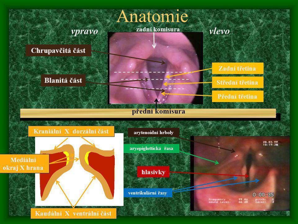 Anatomie vpravovlevo Střední třetina přední komisura zadní komisura Chrupavčitá část arytenoidní hrboly aryepiglottická řasa hlasivky ventrikulární řasy Přední třetina Zadní třetina Blanitá část Kraniální X dorzální část Kaudální X ventrální část Mediální okraj X hrana