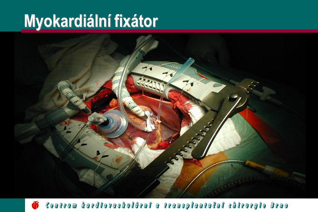 Myokardiální fixátor
