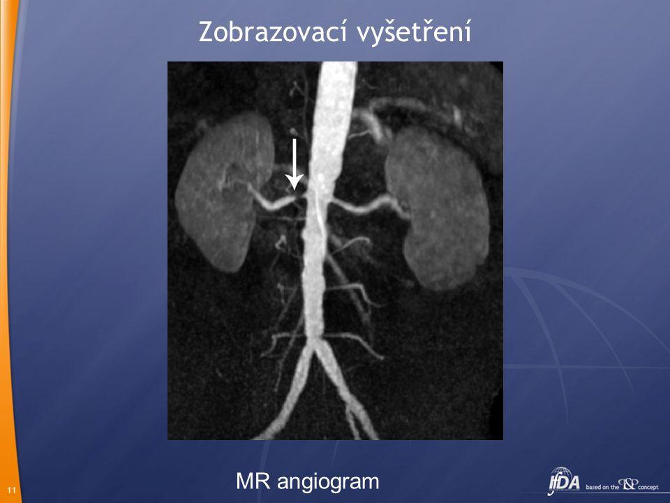11 Zobrazovací vyšetření MR angiogram