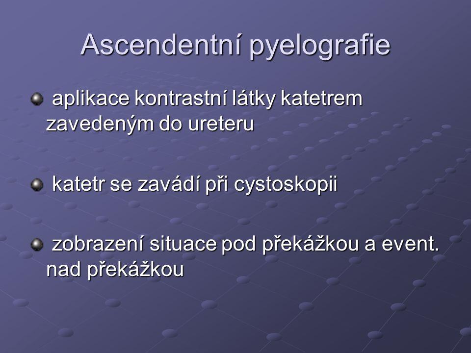 Ascendentní pyelografie aplikace kontrastní látky katetrem zavedeným do ureteru aplikace kontrastní látky katetrem zavedeným do ureteru katetr se zavá