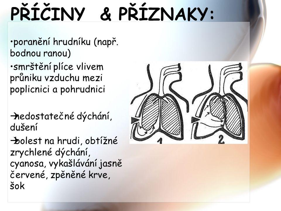 PŘÍČINY & PŘÍZNAKY: poranění hrudníku (např. bodnou ranou) smrštění plíce vlivem průniku vzduchu mezi poplicnici a pohrudnici  nedostatečné dýchání,