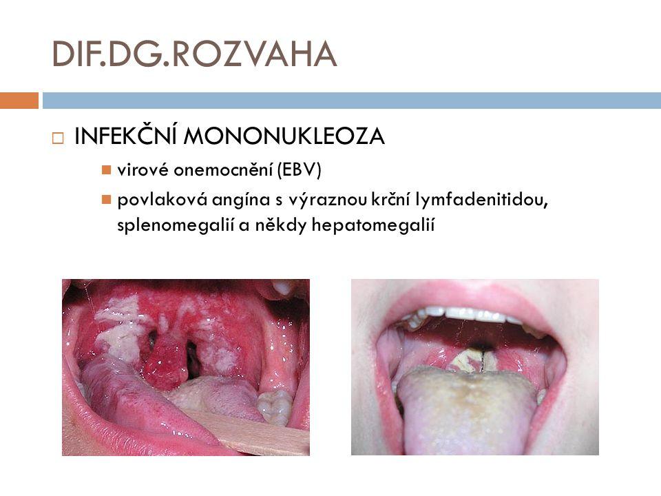 DIF.DG.ROZVAHA  INFEKČNÍ MONONUKLEOZA virové onemocnění (EBV) povlaková angína s výraznou krční lymfadenitidou, splenomegalií a někdy hepatomegalií