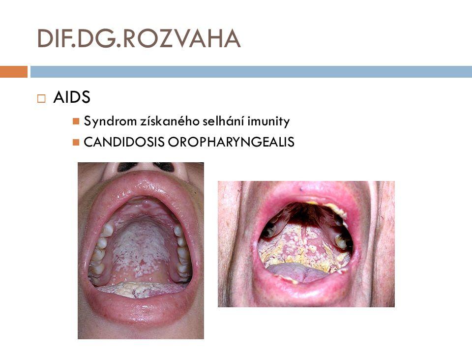 DIF.DG.ROZVAHA  AIDS Syndrom získaného selhání imunity CANDIDOSIS OROPHARYNGEALIS