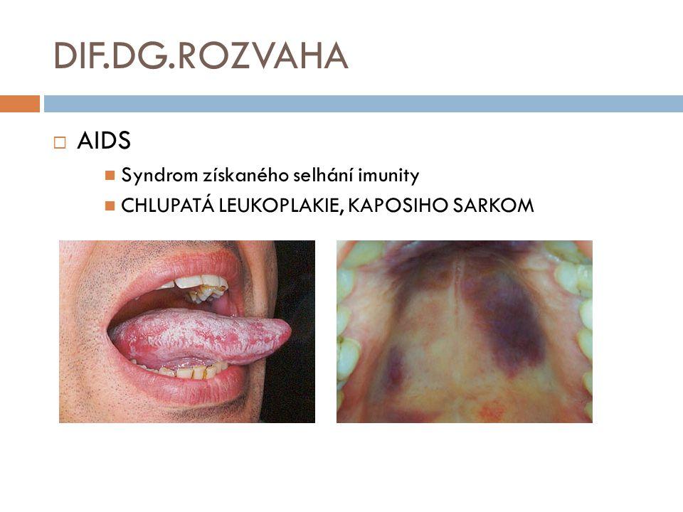 DIF.DG.ROZVAHA  AIDS Syndrom získaného selhání imunity CHLUPATÁ LEUKOPLAKIE, KAPOSIHO SARKOM