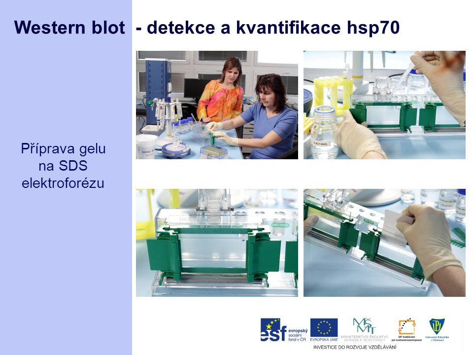 Western blot - detekce a kvantifikace hsp70 Příprava gelu na SDS elektroforézu