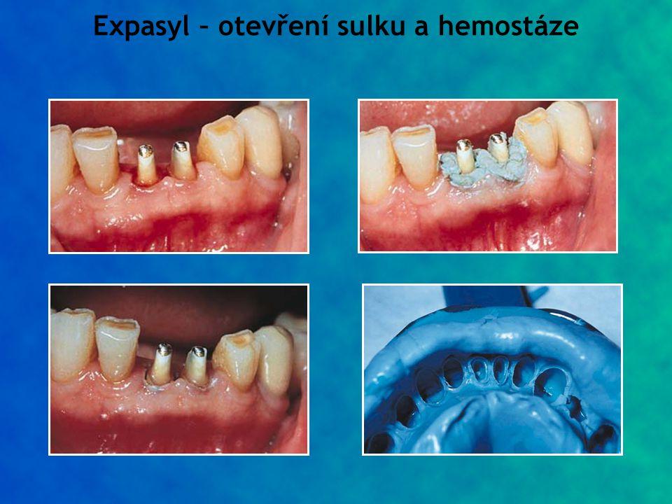 Expasyl – otevření sulku a hemostáze