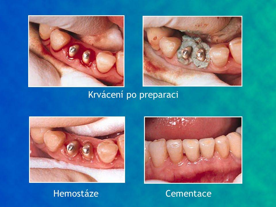 Krvácení po preparaci HemostázeCementace