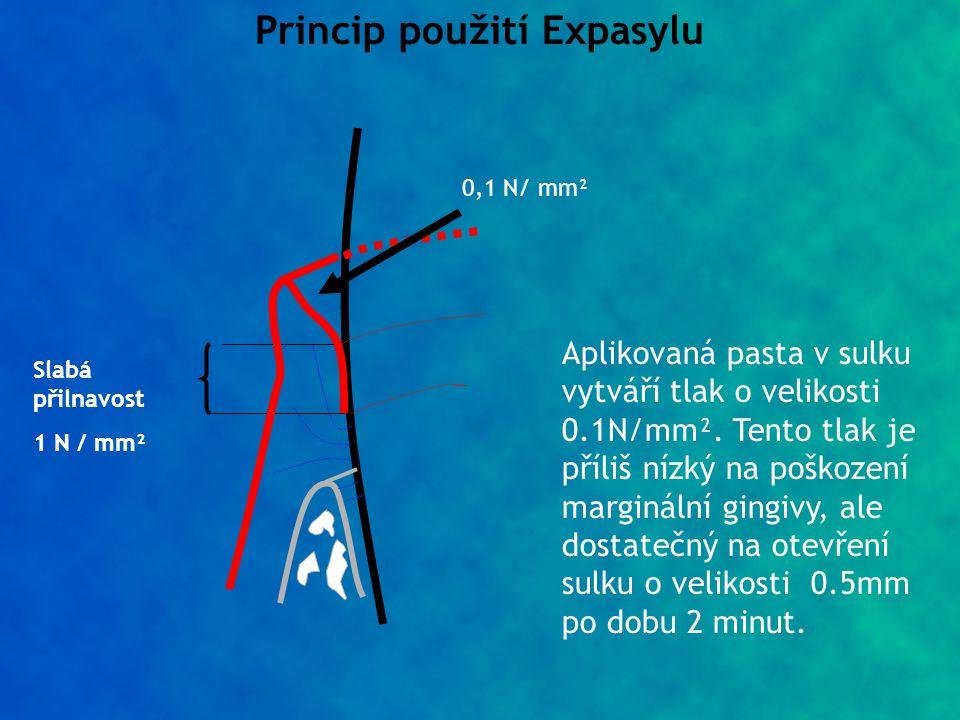 Princip použití Expasylu Slabá přilnavost 1 N / mm² 0,1 N/ mm² Aplikovaná pasta v sulku vytváří tlak o velikosti 0.1N/mm². Tento tlak je příliš nízký