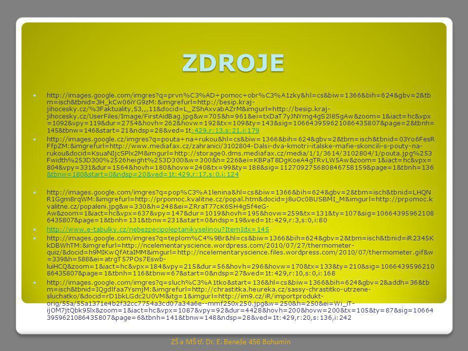 ZDROJE http://images.google.com/imgres q=prvn%C3%AD+pomoc+obr%C3%A1zky&hl=cs&biw=1366&bih=624&gbv=2&tb m=isch&tbnid=3H_kCw06iYG9zM:&imgrefurl=http://besip.kraj- jihocesky.cz/%3Faktuality,53,,,11&docid=L_ZShAxvabAZrM&imgurl=http://besip.kraj- jihocesky.cz/UserFiles/Image/FirstAidBag.jpg&w=705&h=961&ei=txDaT7yJNYmg4gS2l8SgAw&zoom=1&iact=hc&vpx =1092&vpy=119&dur=2754&hovh=262&hovw=192&tx=109&ty=143&sig=106643959621086435807&page=2&tbnh= 145&tbnw=146&start=21&ndsp=28&ved=1t:429,r:13,s:21,i:179:429,r:13,s:21,i:179 http://images.google.cz/imgres q=pouta+na+rukou&hl=cs&biw=1366&bih=624&gbv=2&tbm=isch&tbnid=03Yo6FesR FfpZM:&imgrefurl=http://www.mediafax.cz/zahranici/3102804-Dalsi-dva-kmotri-italske-mafie-skoncili-s-pouty-na- rukou&docid=KsuaNIjcSPlx2M&imgurl=http://storage0.dms.mediafax.cz/media/1/1/3614/3102804/1/pouta.jpg%253 Fwidth%253D300%2526height%253D300&w=300&h=226&ei=KBPaT8DgKoeA4gTRvLW5Aw&zoom=1&iact=hc&vpx= 804&vpy=331&dur=1564&hovh=180&hovw=240&tx=99&ty=188&sig=112709275680846758159&page=1&tbnh=136 &tbnw=180&start=0&ndsp=20&ved=1t:429,r:17,s:0,i:124 &tbnw=180&start=0&ndsp=20&ved=1t:429,r:17,s:0,i:124 http://images.google.com/imgres q=pop%C3%A1lenina&hl=cs&biw=1366&bih=624&gbv=2&tbm=isch&tbnid=LHQN R1Ggm8rqWM:&imgrefurl=http://prpomoc.kvalitne.cz/popal.htm&docid=j8uOc0BUSBMI_M&imgurl=http://prpomoc.k valitne.cz/popaleni.jpg&w=330&h=248&ei=ZRraT77cK6SH4gSf4eG- Aw&zoom=1&iact=hc&vpx=637&vpy=147&dur=1019&hovh=195&hovw=259&tx=131&ty=107&sig=10664395962108 6435807&page=1&tbnh=131&tbnw=231&start=0&ndsp=19&ved=1t:429,r:3,s:0,i:80 http://www.e-tabulky.cz/nebezpecipoleptanikyselinou ItemIdx=145 http://images.google.com/imgres q=teplom%C4%9Br&hl=cs&biw=1366&bih=624&gbv=2&tbm=isch&tbnid=iR2345K kDBWhTM:&imgrefurl=http://ncelementaryscience.wordpress.com/2010/07/27/thermometer- quiz/&docid=h9MIKwQfAtaIMM&imgurl=http://ncelementaryscience.files.wordpress.com/2010/07/thermometer.gif&w =339&h=588&ei=atrgT57POs7Eswb- luiHCQ&zoom=1&iact=hc&vpx=184&vpy=215&dur=56&hovh=296&hovw=170