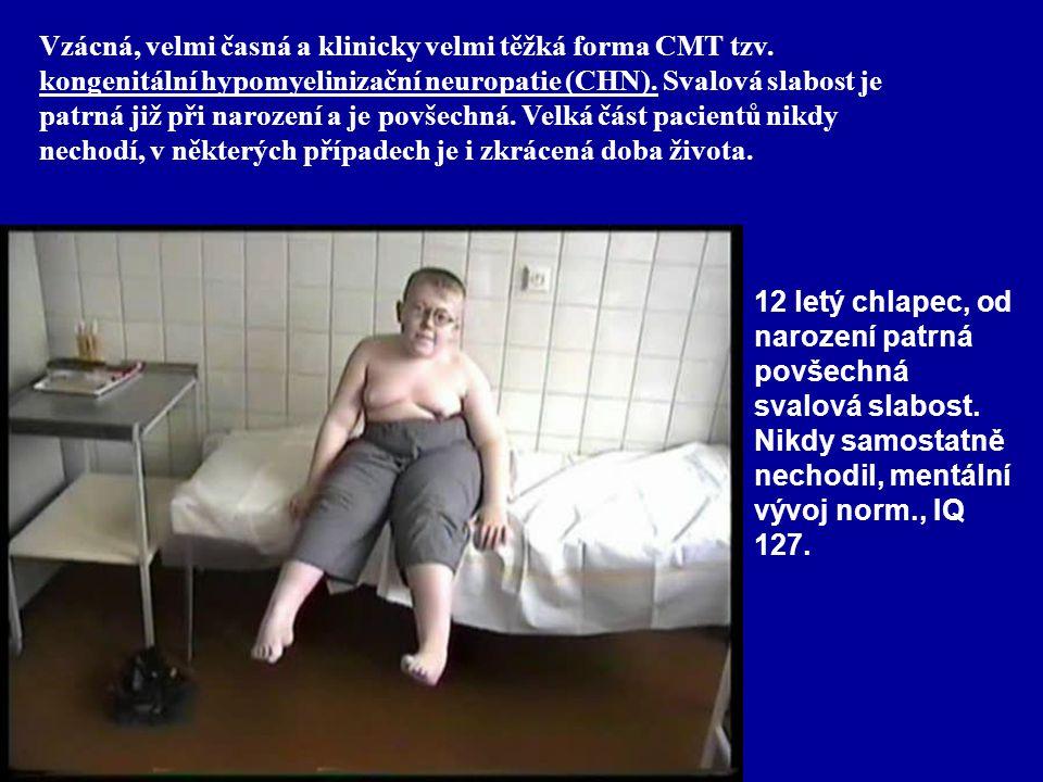 12 letý chlapec, od narození patrná povšechná svalová slabost. Nikdy samostatně nechodil, mentální vývoj norm., IQ 127. Vzácná, velmi časná a klinicky