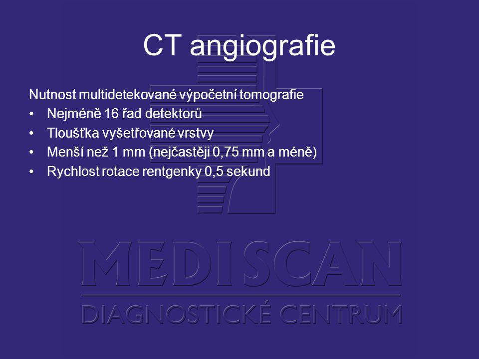 CT angiografie Nutnost multidetekované výpočetní tomografie Nejméně 16 řad detektorů Tloušťka vyšetřované vrstvy Menší než 1 mm (nejčastěji 0,75 mm a