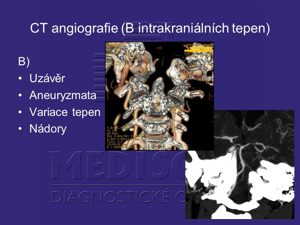 CT angiografie (B intrakraniálních tepen) B) Uzávěr Aneuryzmata Variace tepen Nádory