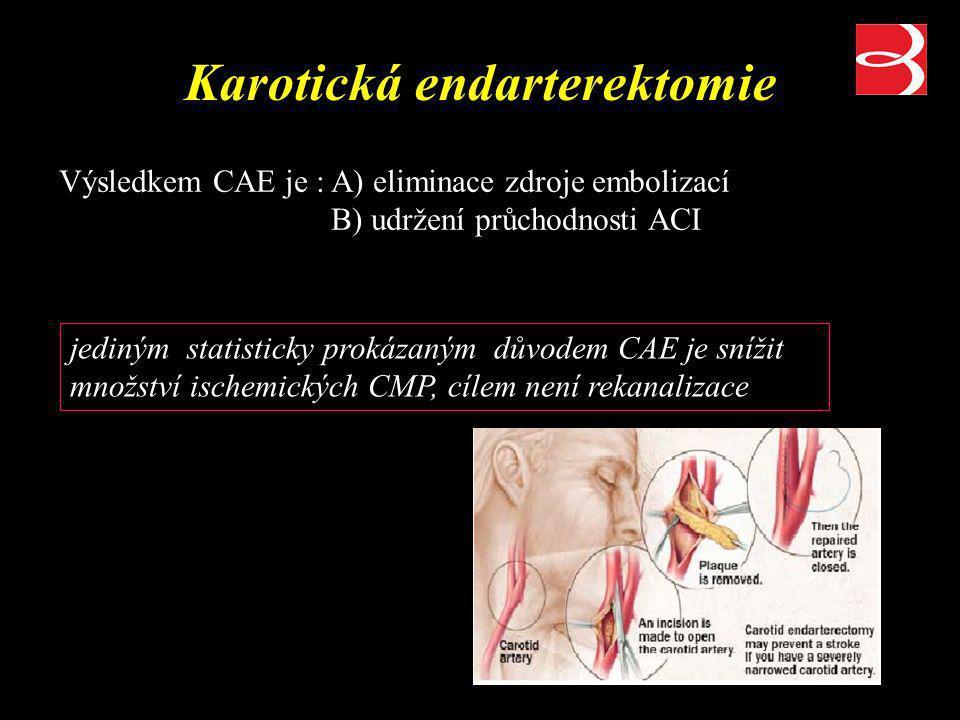 Indikace ke karotické endarterektomii asymptomatický pacient –stenóza ACI =>60% dle NASCET (ACAS) symptomatický pacient –stenóza ACI =>50% dle NASCET (NASCET) indikace založeny na prospektivních randomizovaných studiích (NASCET, ECST-sympt.