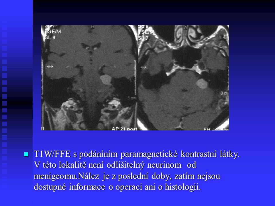 T1W/FFE s podáníním paramagnetické kontrastní látky. V této lokalitě není odlišitelný neurinom od menigeomu.Nález je z poslední doby, zatím nejsou dos