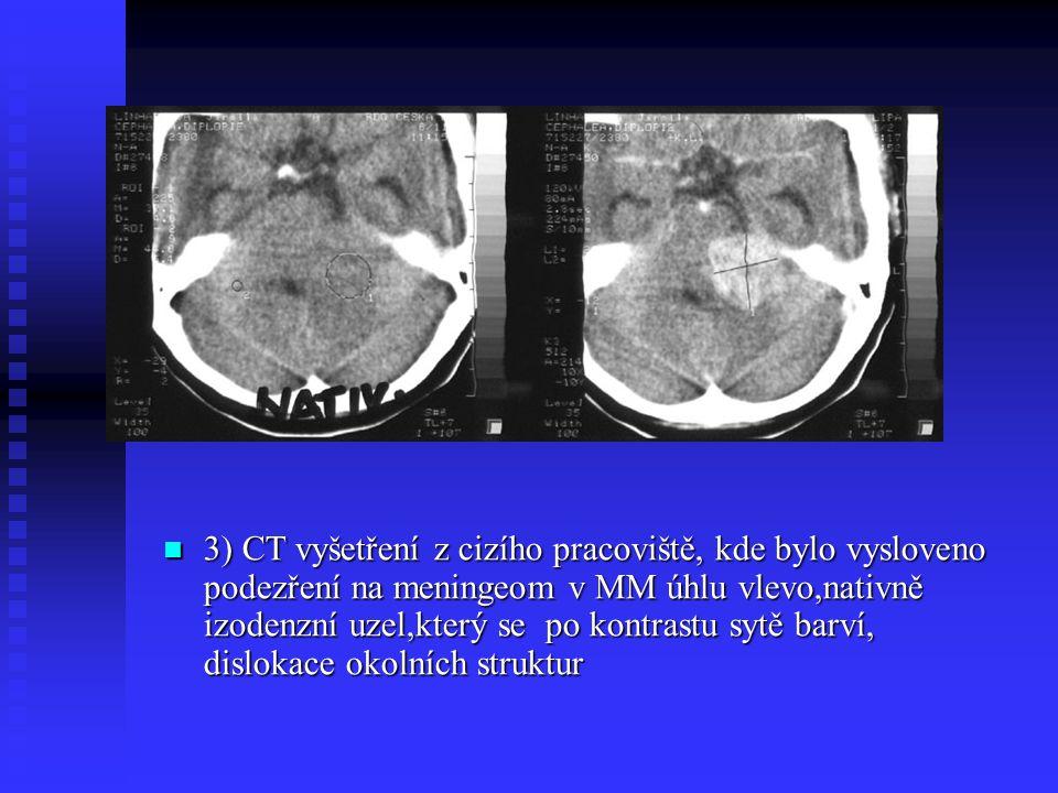 3) CT vyšetření z cizího pracoviště, kde bylo vysloveno podezření na meningeom v MM úhlu vlevo,nativně izodenzní uzel,který se po kontrastu sytě barví
