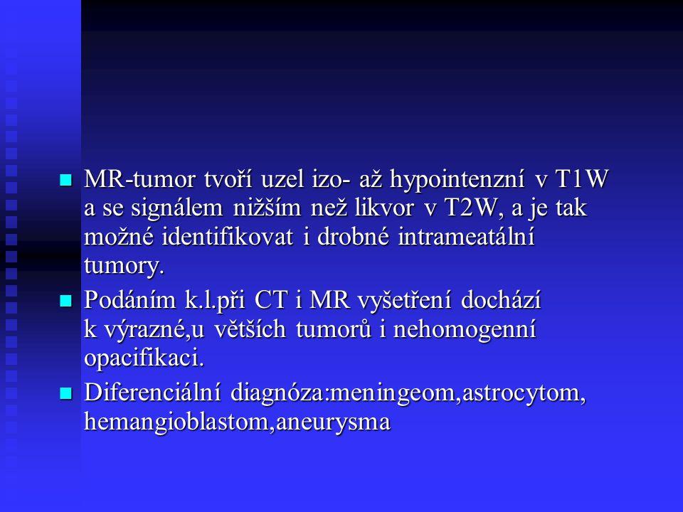 MR-tumor tvoří uzel izo- až hypointenzní v T1W a se signálem nižším než likvor v T2W, a je tak možné identifikovat i drobné intrameatální tumory. MR-t