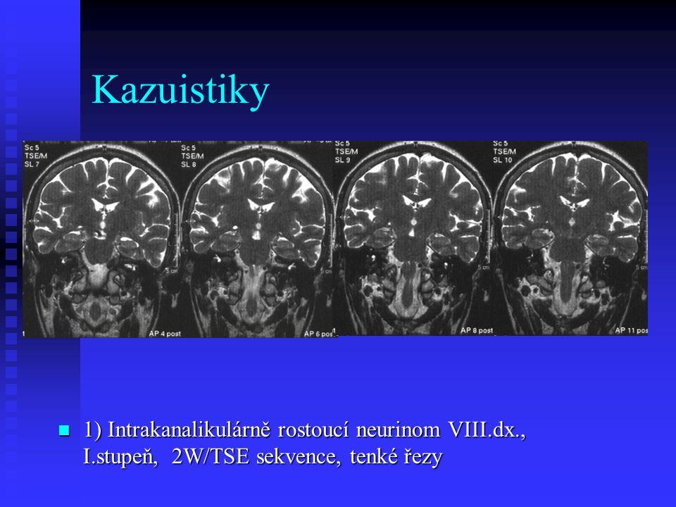 Kazuistiky 1) Intrakanalikulárně rostoucí neurinom VIII.dx., I.stupeň, 2W/TSE sekvence, tenké řezy 1) Intrakanalikulárně rostoucí neurinom VIII.dx., I