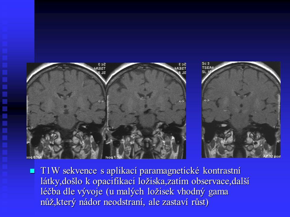 T1W sekvence s aplikací paramagnetické kontrastní látky,došlo k opacifikaci ložiska,zatím observace,další léčba dle vývoje (u malých ložisek vhodný ga
