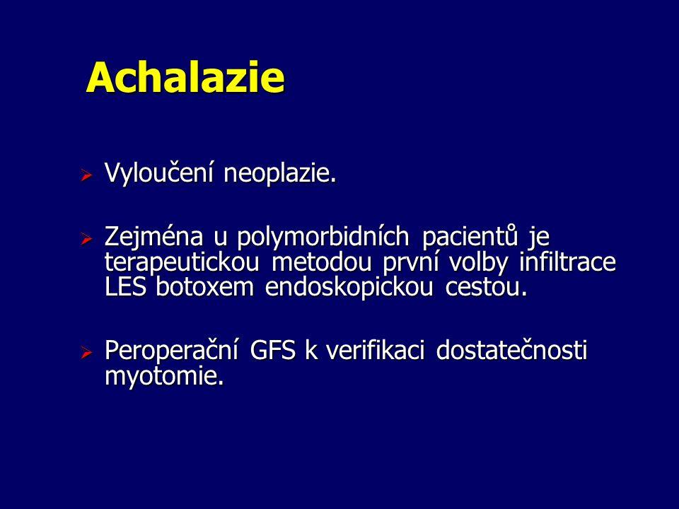 Achalazie  Vyloučení neoplazie.  Zejména u polymorbidních pacientů je terapeutickou metodou první volby infiltrace LES botoxem endoskopickou cestou.