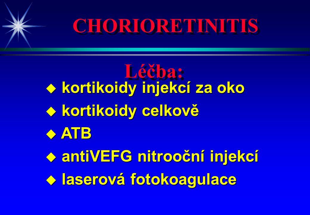 CHORIORETINITIS u kortikoidy injekcí za oko u kortikoidy celkově u ATB u antiVEFG nitrooční injekcí u laserová fotokoagulace Léčba: