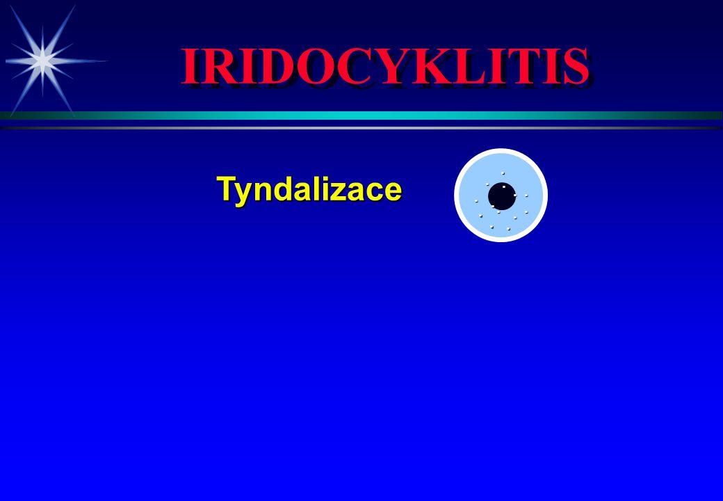 IRIDOCYKLITIS Tyndalizace Tyndalizace hypopyon hypopyon.............