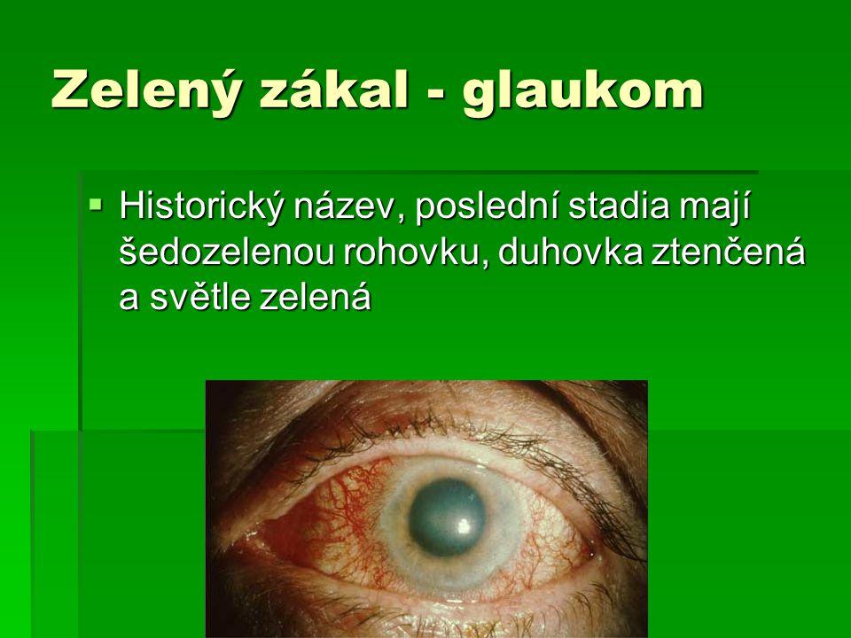 Zelený zákal - glaukom  Historický název, poslední stadia mají šedozelenou rohovku, duhovka ztenčená a světle zelená