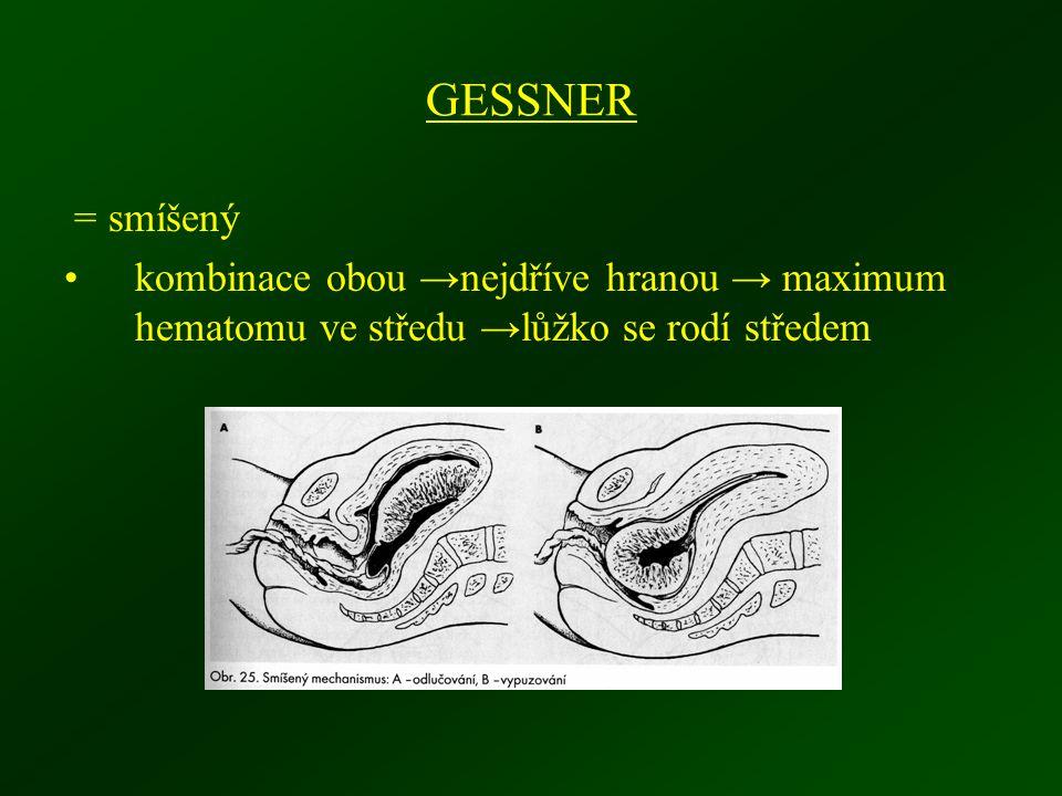 GESSNER = smíšený kombinace obou →nejdříve hranou → maximum hematomu ve středu →lůžko se rodí středem