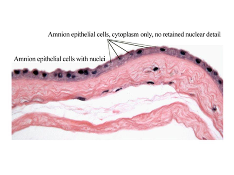 Sekreční funkce Placenta představuje velmi výkonnou vnitřně sekretorickou žlázu.