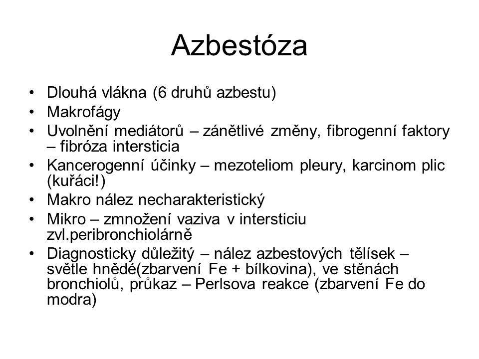 Azbestóza Dlouhá vlákna (6 druhů azbestu) Makrofágy Uvolnění mediátorů – zánětlivé změny, fibrogenní faktory – fibróza intersticia Kancerogenní účinky
