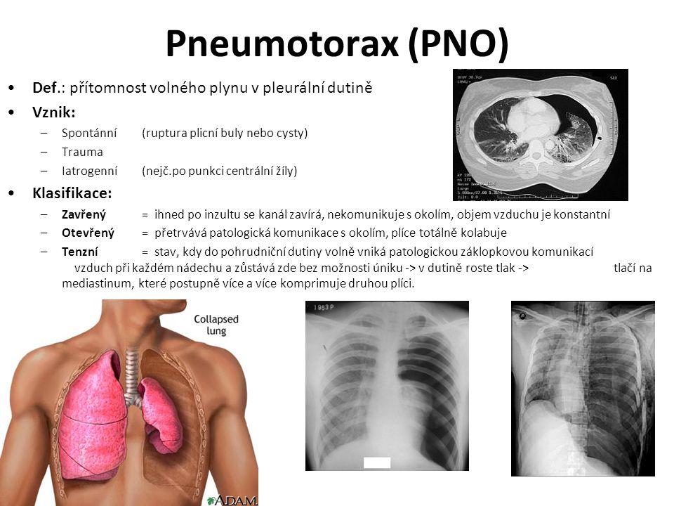 Pneumotorax (PNO) Def.: přítomnost volného plynu v pleurální dutině Vznik: –Spontánní(ruptura plicní buly nebo cysty) –Trauma –Iatrogenní(nejč.po punk