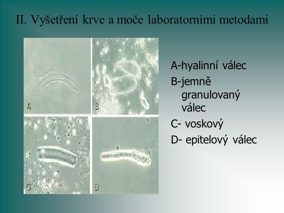 II. Vyšetření krve a moče laboratorními metodami A-hyalinní válec B-jemně granulovaný válec C- voskový D- epitelový válec