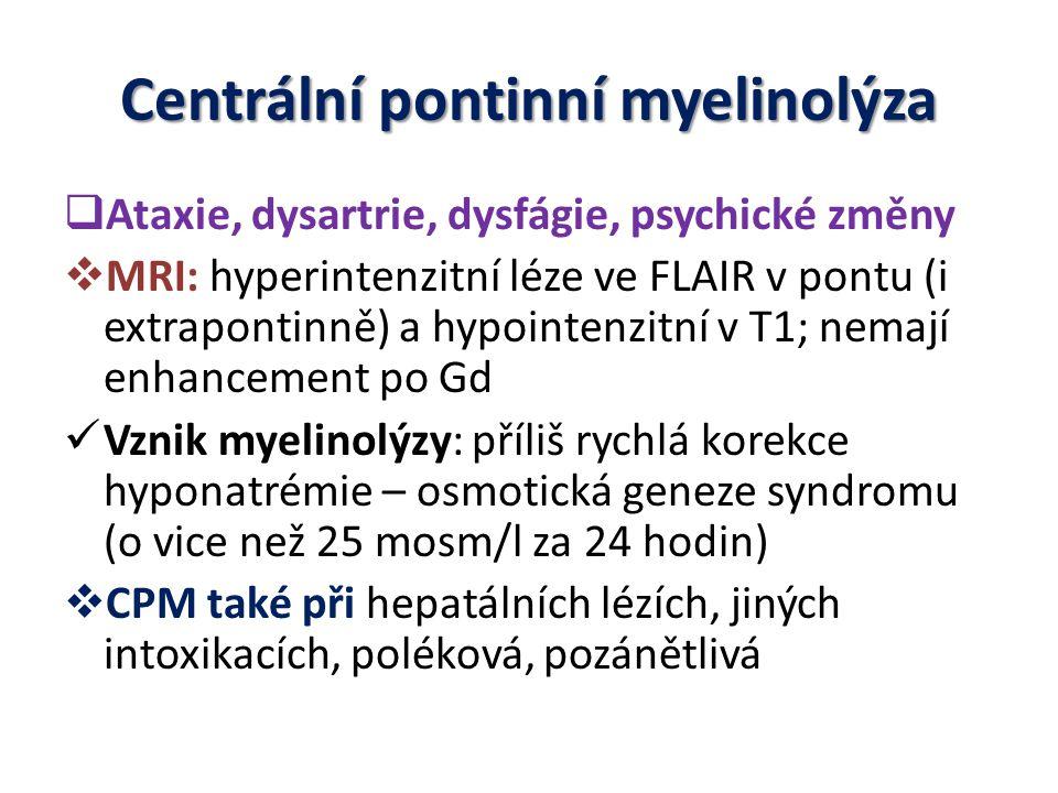 Centrální pontinní myelinolýza  Ataxie, dysartrie, dysfágie, psychické změny  MRI: hyperintenzitní léze ve FLAIR v pontu (i extrapontinně) a hypoint