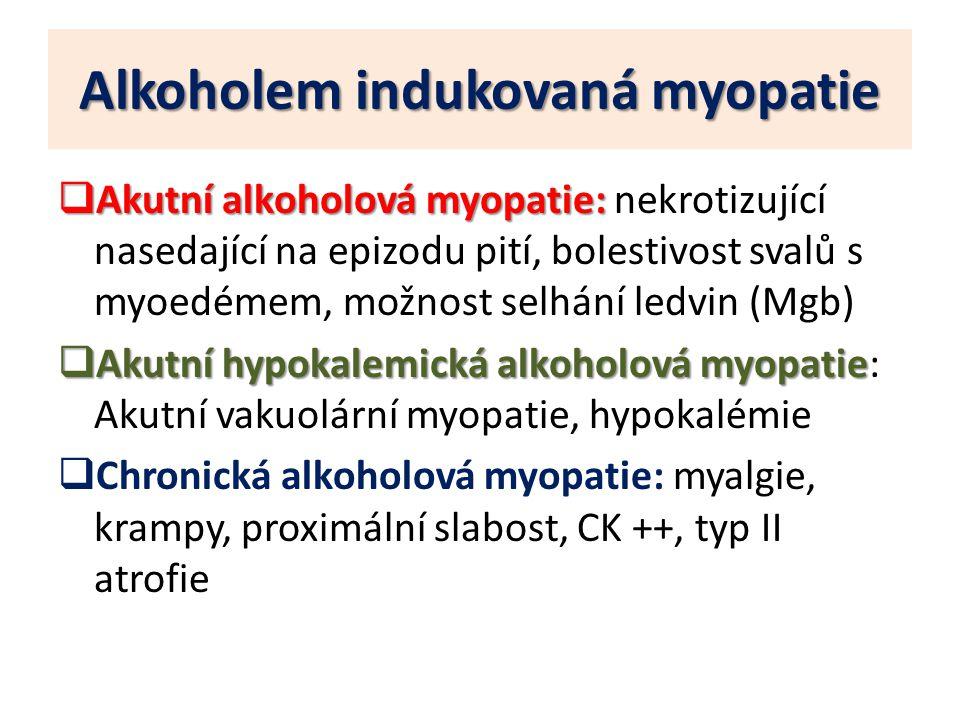Alkoholem indukovaná myopatie  Akutní alkoholová myopatie:  Akutní alkoholová myopatie: nekrotizující nasedající na epizodu pití, bolestivost svalů